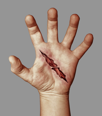 denoting: Wounded hand denoting suicide, and suicide prevention