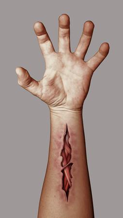 herida: Mano herida que denota el suicidio y la prevención del suicidio Foto de archivo