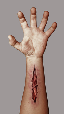 cut wrist: Wounded hand denoting suicide, and suicide prevention