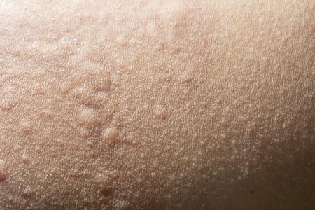 Primer plano de la urticaria o erupción de la alergia