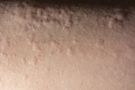 pokrzywka: Close up of urticaria or allergy rash Zdjęcie Seryjne