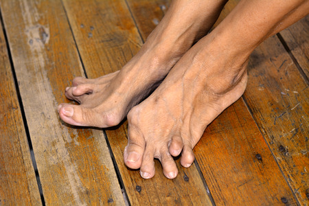 gout: Old womans foot deformed from rheumatoid or gout arthritis Stock Photo