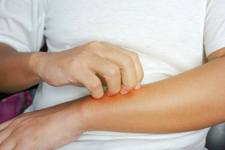 irritation: Person scratching at itchy skin on their arms - closeup Stock Photo