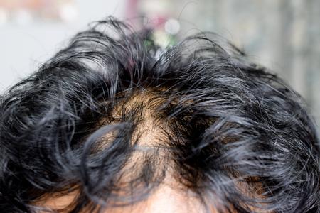 Asian male head with hair loss - closeup Standard-Bild