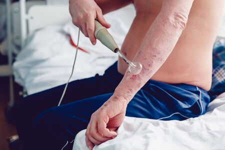 apathy: patient with a skin disease keeps the Darsonval electric shock device for treating dermatitis, apathy, seborrhea, eczema.