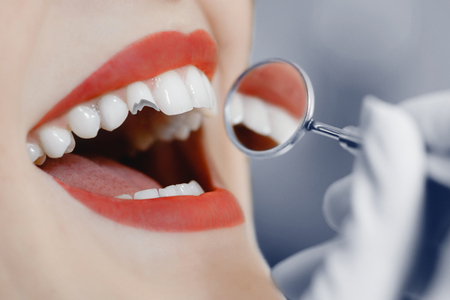 Broken tooth. A girl at a dentist's reception at dentist, a tooth broke. Foto de archivo