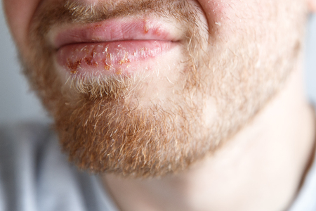 Close-up of herpes on lips cold of man. Dermatological oral skin diseases, bloating, vesicles.