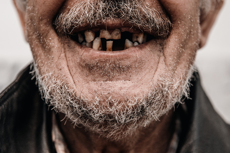 Old man without part of his teeth is smiling Stock Photo