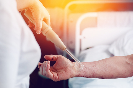 doctor with the phone treats a patient with a skin disease using the Darsonval apparatus for the treatment of dermatitis, apathic, seborrhea, eczema..high contrast Stock Photo