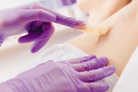 Applying liquid sugar paste to depilation underarm skin woman. Sugaring beauty concept.