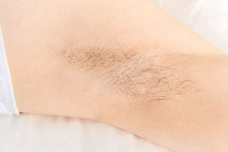 Female underarm with long hair preparation before depilation procedure, white color