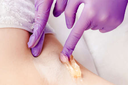 Woman underarm sugar hair removal procedure beauty salon. Epilation concept
