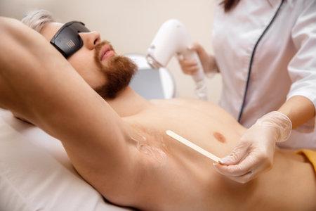 Closeup hair removal procedure from men armpit, laser epilation studio 版權商用圖片