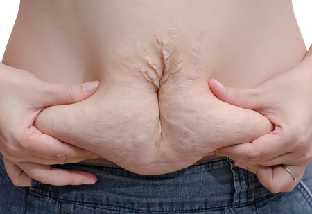 scarred: Asian woman showing her stretch marks Stock Photo