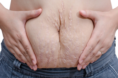 Asian woman showing her stretch marks photo