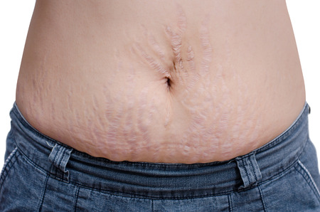 dermal: Asian woman showing her stretch marks Stock Photo