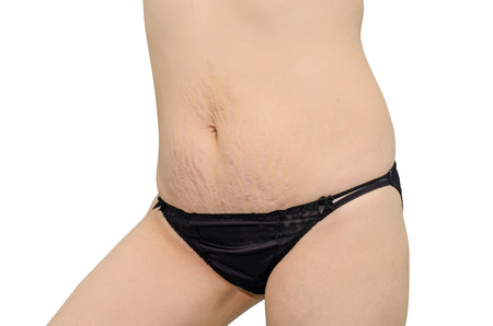 Asian woman in black underwear showing her stretch marks