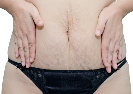 Asian woman in black underwear showing her stretch marks photo