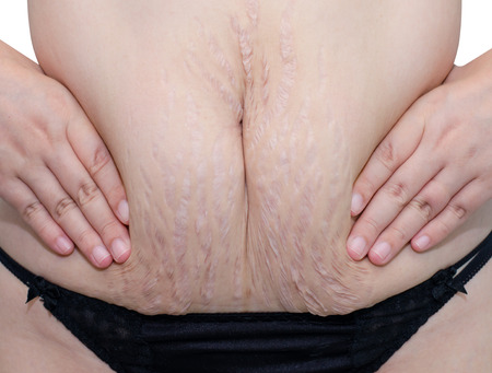 Closeup of woman belly with stretch marks.