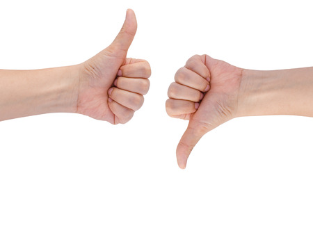 THUMBS DOWN: Hand with thumb up and down Stock Photo