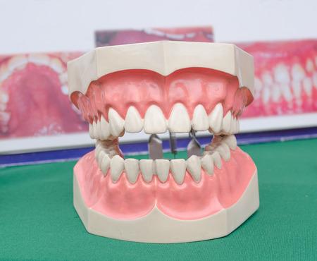 medical technical equipment: Dentoform, Dental teeth model