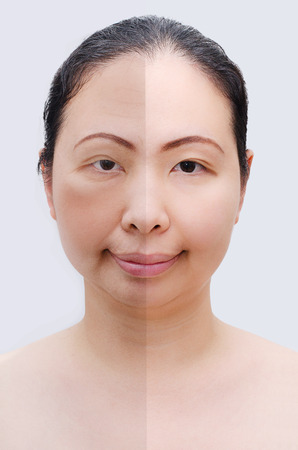 Portrait of asian woman before and after botox. Young and old face.