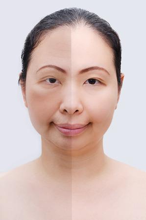 arrugas: Retrato de la mujer asi�tica antes y despu�s de botox. Rostro joven y viejo.