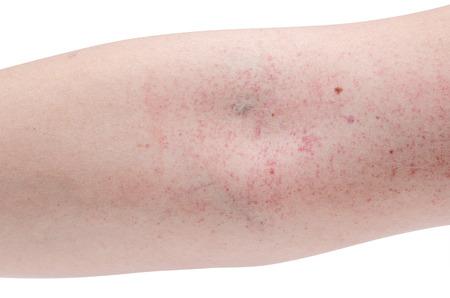 hemorrhagic: Blood rush at arm from dengue fever Stock Photo