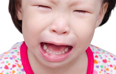 sores: Cry girl with sore mouth over white Stock Photo