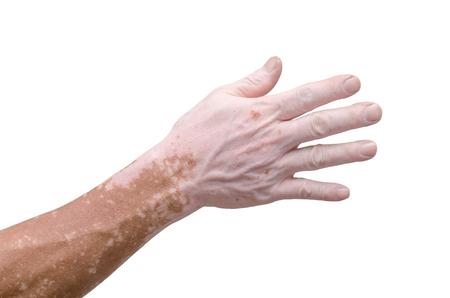 Man's hand with with vitiligo on white background