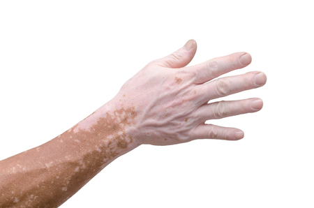 Mans hand with with vitiligo on white background Stock Photo