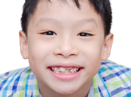 toothless: Happy Asian boy toothless smile close-up,new teeth rising over white background Stock Photo