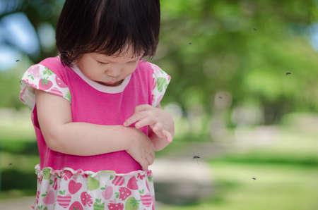 乳幼児: アジア少女が蚊の咬傷にアレルギー