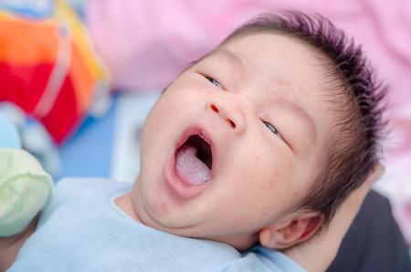 舌カンジダ症と少しアジア新生児