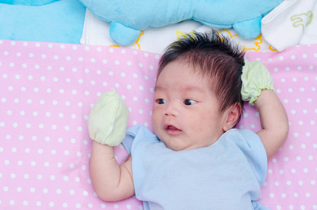 Little asian newborn with many rash on face Stock Photo