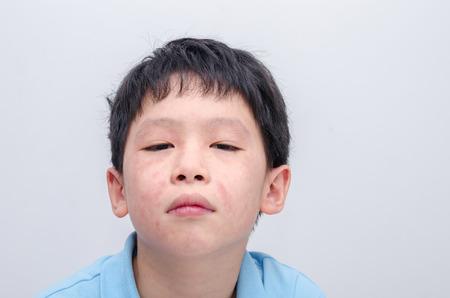 pokrzywka: Chłopiec azjatycki z alergii skóry na białym