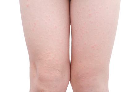 sarpullido: Joven asiático piel piernas del niño con la erupción sobre el fondo blanco
