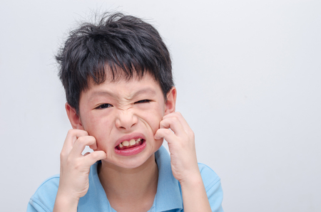 Young asian boy scratching his allergy face 스톡 콘텐츠