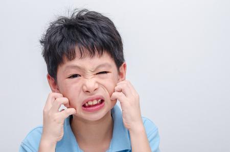 pokrzywka: Młody chłopiec azjatyckich drapiąc twarz alergii