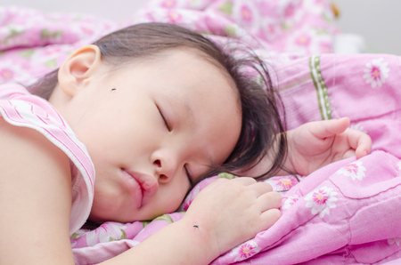 swelling: Little asian girl sleeping on bed and bite by mosquitoes Stock Photo