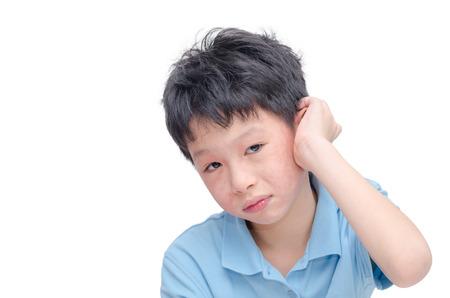 pokrzywka: Młody chłopiec azjatyckich drapiąc alergia skórna Zdjęcie Seryjne