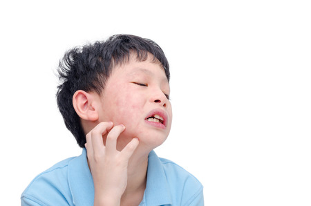 Young asian boy scratching his allergy face Stockfoto