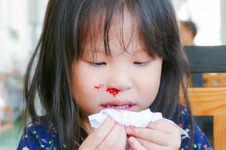Little girl with bleeding nose 스톡 콘텐츠