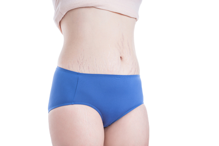 Asian woman belly skin with stretch mark scar over white background