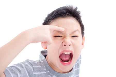 Asian teenager point at acne on his face and screaming isolated over white background