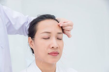 Beautiful asian woman receiving facial acupuncture treatment at clinic ,Alternative medicine concept.