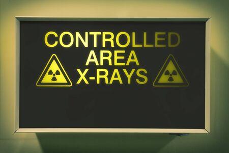 병원의 통제 구역 엑스레이 라이트 박스