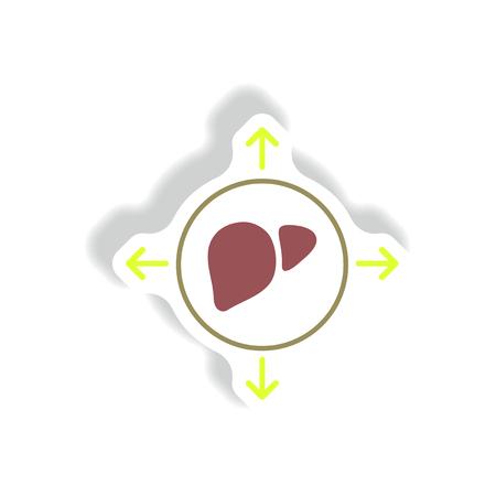 leucemia: Vector de papel de la etiqueta engomada diversos síntomas de la leucemia en los cuerpos