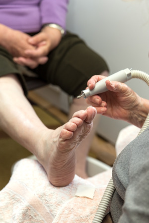 nippers: chiropody at a senior woman at home