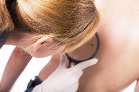 moles: female doctor makes skin examination with a glass Stock Photo